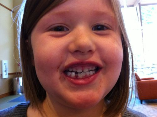 Claire lost 3rd tooth